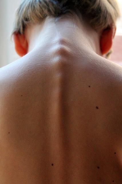 Ćwiczenia na poprawę postawy ciała – ćwiczenia zdrowy kręgosłup Białystok. Gabinet, klinika leczenia kręgosłupa Poznań
